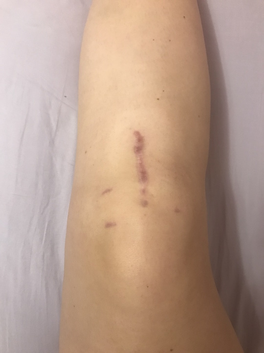 View of knee scar